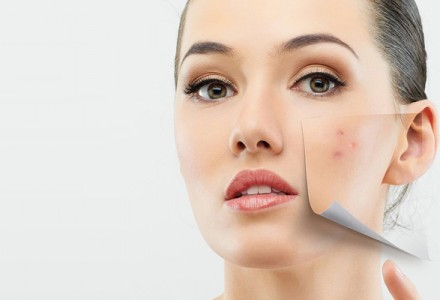 peeling-anti-acne
